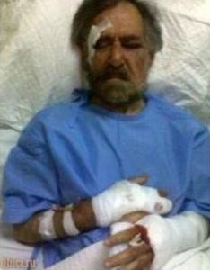 карикатурист после нападения
