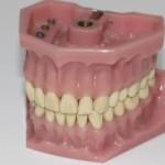 Найден способ отрастить новые зубы