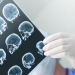 Врачи предупредили о развитии инсульта у детей, переболевших коронавирусом