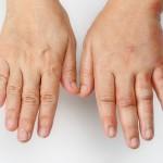 Вплоть до рака: кардиолог рассказал об опасности отекших рук